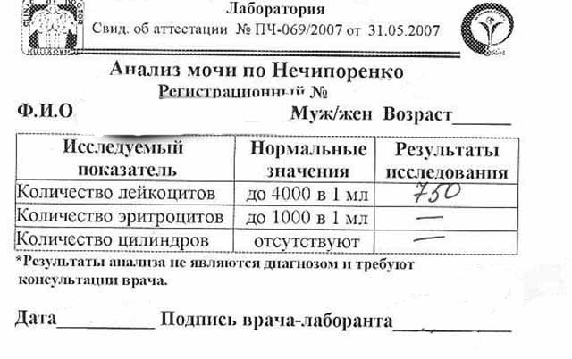 Анализ мочи нечипоренко у беременных 57